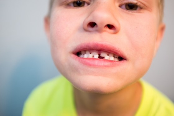 ChasesFirstTooth-1.jpg